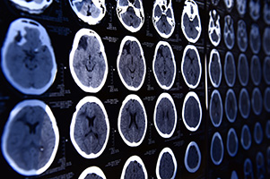 Stroke/Tramatic Brain Injury (TBI)